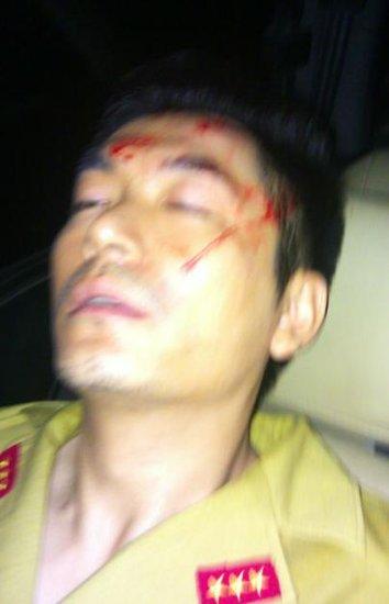 演员朱泳腾拍戏时撞伤头部 送山区医院处理伤口