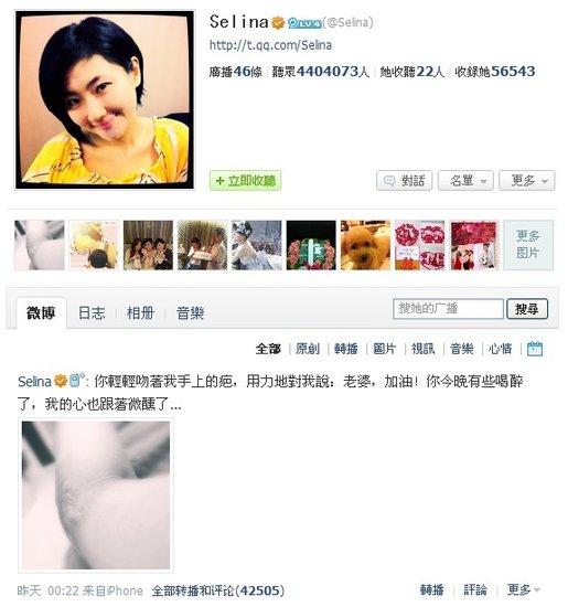 """张承中为Selina写""""90天烧伤日记"""" 吻疤痕示爱"""