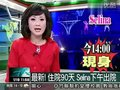 视频:烧伤入院90天 Selina今下午出院