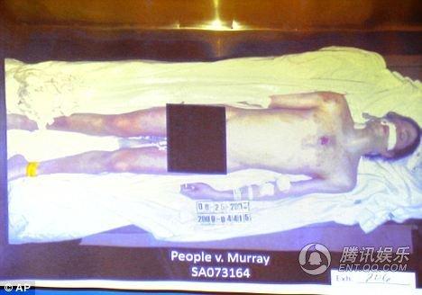 杰克逊遗体照被电视直播 解剖显示死于他杀