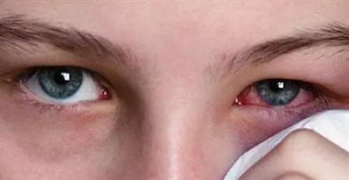 科学正确地挑选美瞳,别让美瞳成为毁瞳