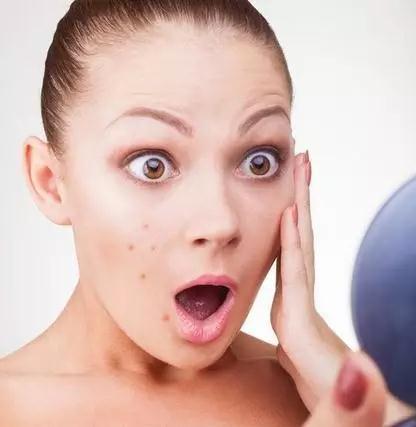 水杨酸果酸到底是啥拯 救痘痘肌真的有效吗