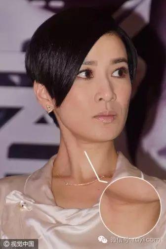 """没开玩笑!N年后杨紫的""""暴瘦颈""""=赵雅芝的褶皱脖子"""