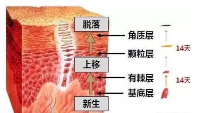 防治粉刺并不难,正确预防治疗方法才重要!