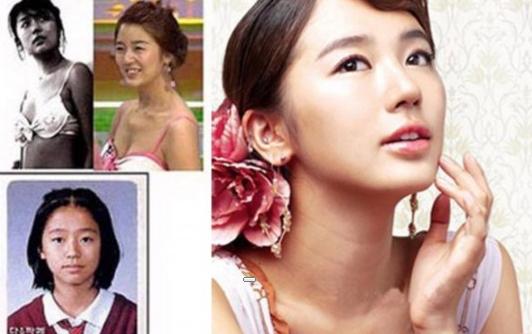韓星整容太瘋狂 80%以上韓星都有整形史
