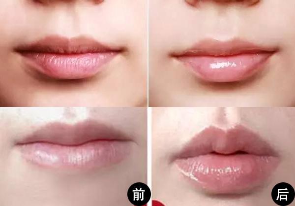 八公举:宋智孝情趣像嘴唇?原来是最流行的jeldnf果冻补丁图片