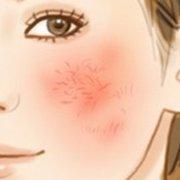 """又是一年换季时,肌肤的敏感""""火山""""爆发到底怎么破?"""
