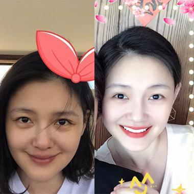 杨丞琳七年没长一条皱纹 还不是她找对了笑的用力点