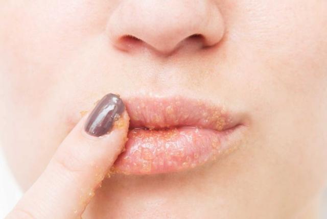 这样也就避免了保湿霜糊在长痘痘的脸上.如果你的脸对香水很敏感,