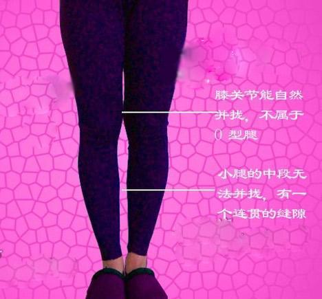 女生腿型的分类
