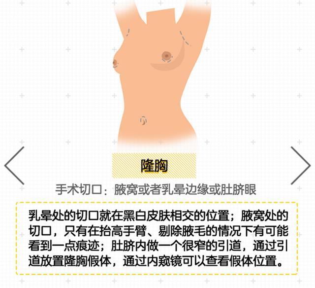 美容百科:一张图看穿女明星的整形刀口藏在哪