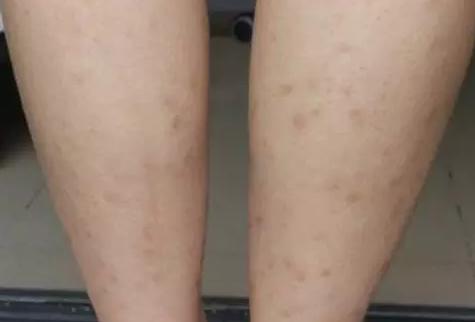 张碧晨敢和奚梦瑶比腿,佩服!但她腿上这些疤是什么鬼…