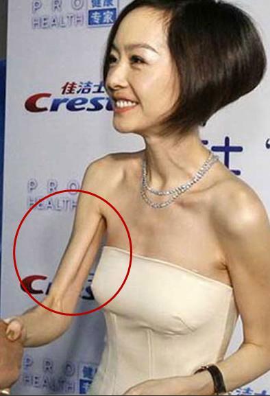 """八公举:""""丸型臂""""星人升级""""直角臂""""这些明星告诉你手臂粗肩不仅仅因为胖"""