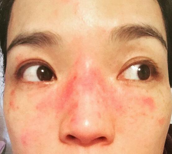 脸部皮肤薄怎么办_脸部皮肤过敏的症状问:我的症状是脸上皮肤过敏,不痒,脱皮,小疙瘩