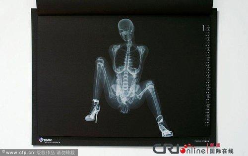 日本一组图推出X光版骨感漫画厂商(日历)和kkula美女图片