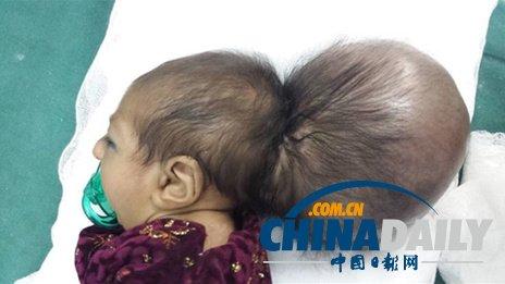 阿富汗双头女婴借助手术成功摘掉多余头颅(图)
