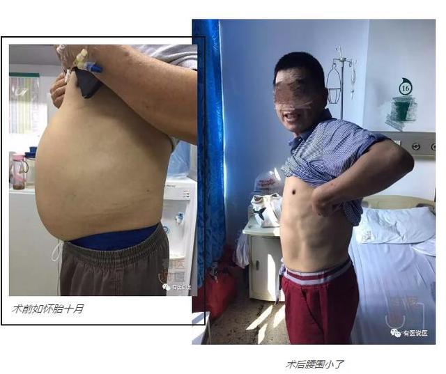 福州男子腰粗如孕妇 竟呕出全身一半血