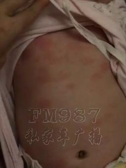 福州5月大婴儿水疗中心游泳后 出现严重过敏反应