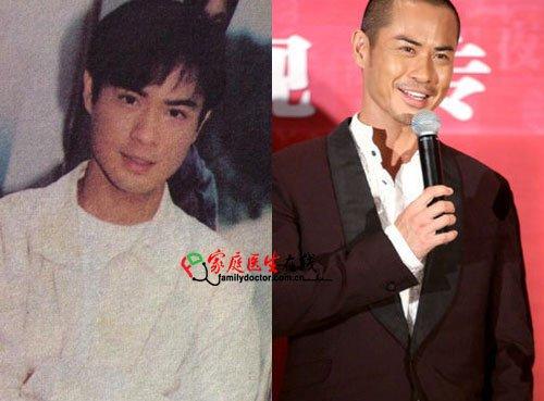 细数TVB被传整容的男明星