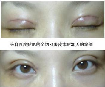 美容医院双眼皮手术的独到之处
