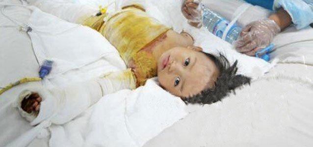 两岁半女孩跌落开水锅 烫伤面积65%仍未脱险
