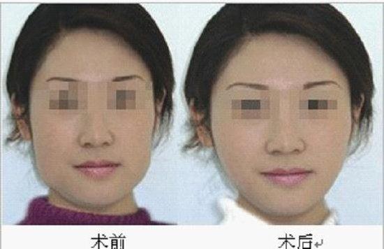 整形美容手術前檢查項目