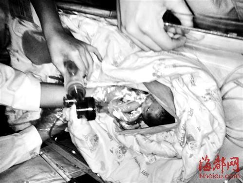 """早产""""巴掌男婴""""出生仅两斤 靠呼吸机维持生命"""