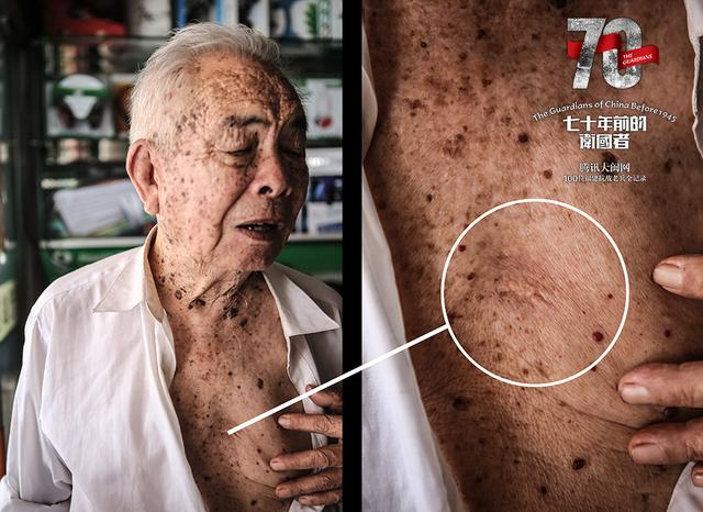 余玉林:自己拔出嵌在身体里1个月的子弹