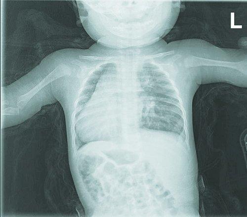 他的心脏、脾脏长在右边,肝、胆长在左边,器官的位置与正常人完全图片