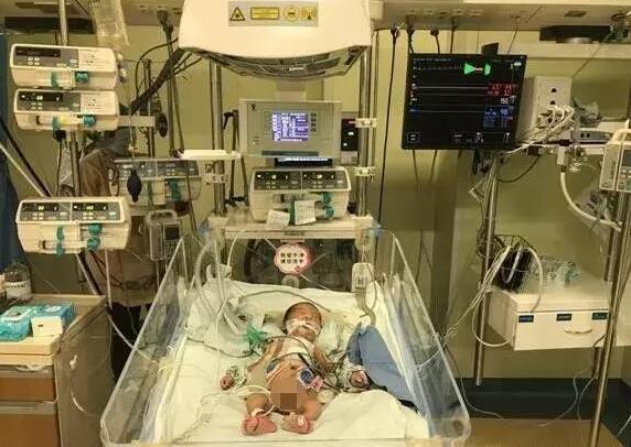 """福建男婴自带""""心脏炸弹"""" 出生仅15天就手术"""