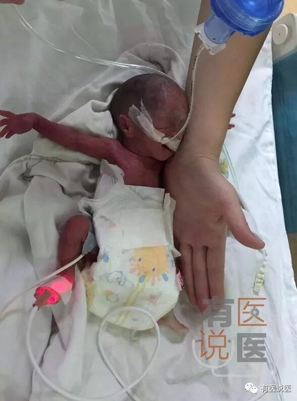 莆田高龄母亲诞下拇指宝宝 仅巴掌大一点