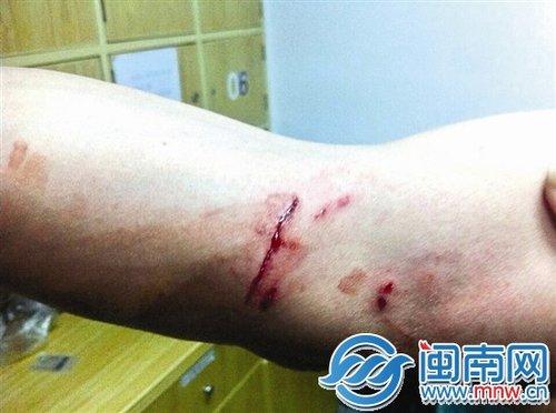 陈警官右手臂受伤流血-石狮市区套牌路虎闯关 推行民警百米致其受伤