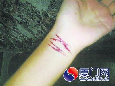 割手腕流血图片 图,自残割手腕流血图片,qq割手腕图片
