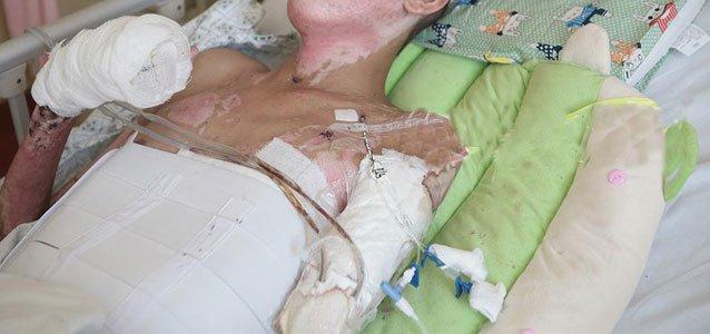 17岁男生昏迷一个月后发现左手被截 浑身绑绷带