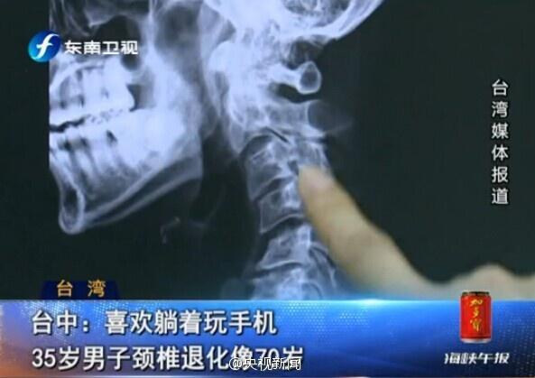 35岁男子长期躺着玩手机 颈椎退化如70岁