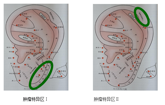 肠肿瘤细胞异型性手绘图