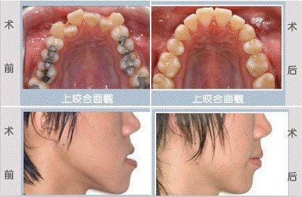 儿童牙齿活动矫正