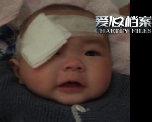 佛山6个月女童少了只眼 家长求医无果