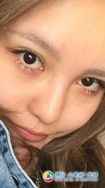 罗志祥网红女友自信晒素颜照 鼻头毛孔粗被手术指疤痕
