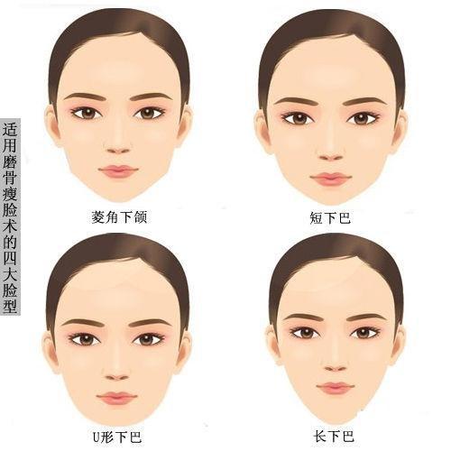 哪种磨骨瘦脸术?