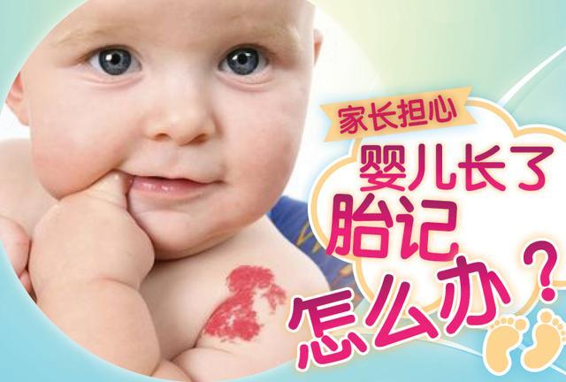 家长担心 婴儿长了胎记怎么办?
