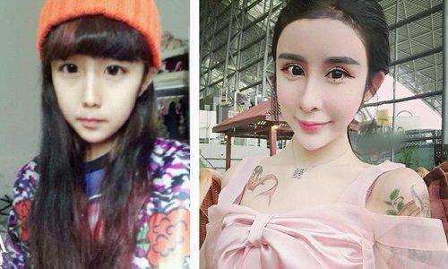 """李蒽熙整容前是一个可爱的妹子,整容后却变成了""""蛇精女"""""""