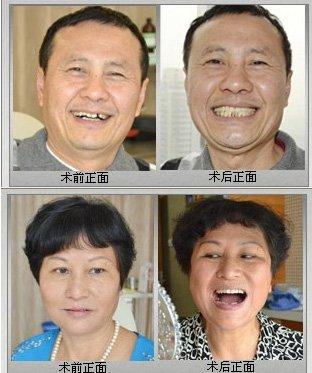德伦口腔部分牙齿种植真人案例