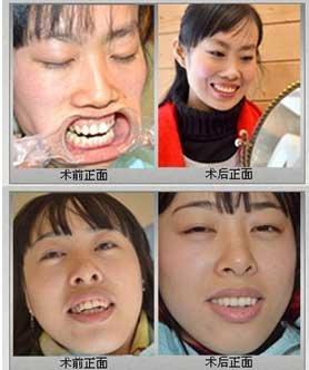 牙齿美容冠修复真人案例