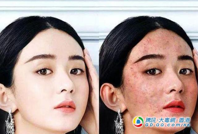 女星突然满脸皱纹 是被整了吗?