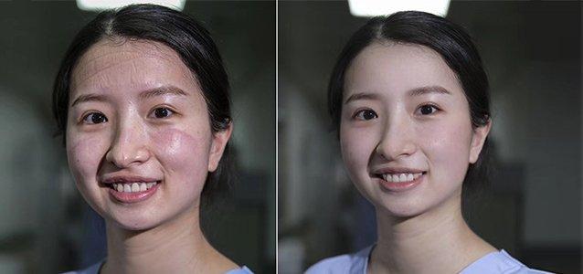 那群脸上布满压痕的护士,原来真正的样子这么美!