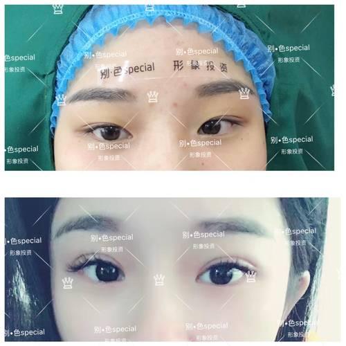 埋线双眼皮与纳米无痕双眼皮有哪些区别 哪个更好
