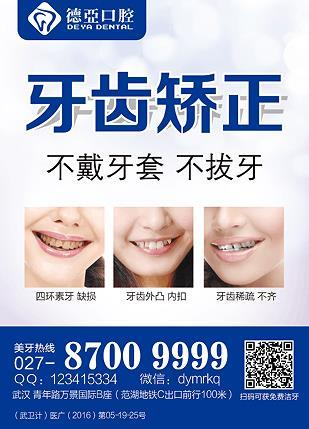 戴牙套脸型会难看吗?德亚口腔不戴牙套当天矫正