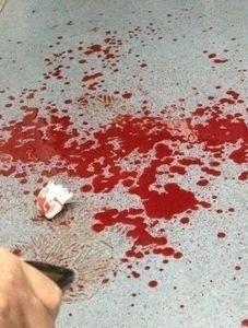 """北京地铁""""划脸男""""划伤多名女子 一伤者缝15针"""