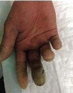 宜昌男子被鱼刺扎手致多脏器衰竭 靠截肢保命